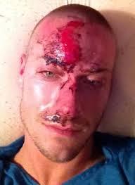 gay man attacked